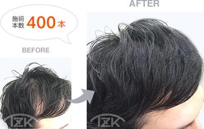 前髪増毛 施術本数400本