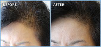 ステルス増毛の女性の生え際施術例 約100本
