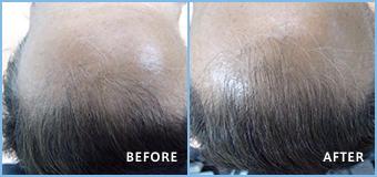 ステルス増毛の男性の生え際施術例 約100本