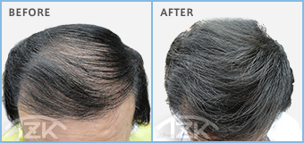 TZK増毛の男性の施術例 約8,000本