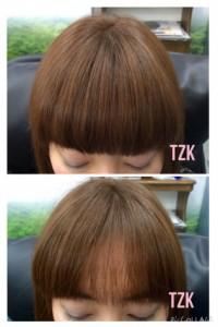 TZK増毛の施術例